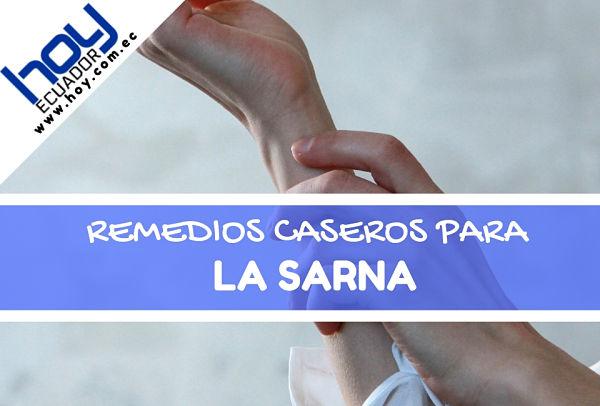 Remedios caseros para la Sarna