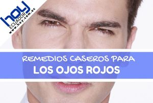 remedios caseros para la irritación de los ojos