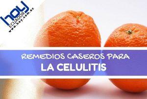 remedios naturales para la celulitis