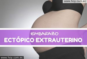EMBARAZO ECTÓPICO EXTRAUTERINO