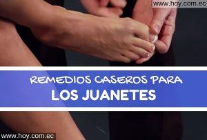 Remedios Caseros para los Juanetes