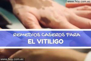 REMEDIOS NATURALES PARA EL VITILIGO