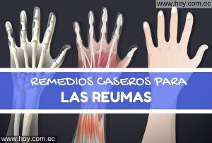 REMEDIOS NATURALES PARA LA REUMATITIS