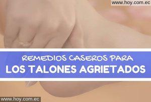 REMEDIOS NATURALES PARA LOS TALONES AGRIETADOS