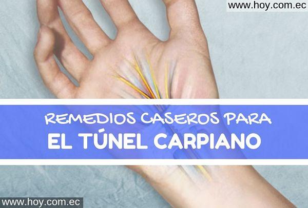 remedios naturales para el túnel carpiano